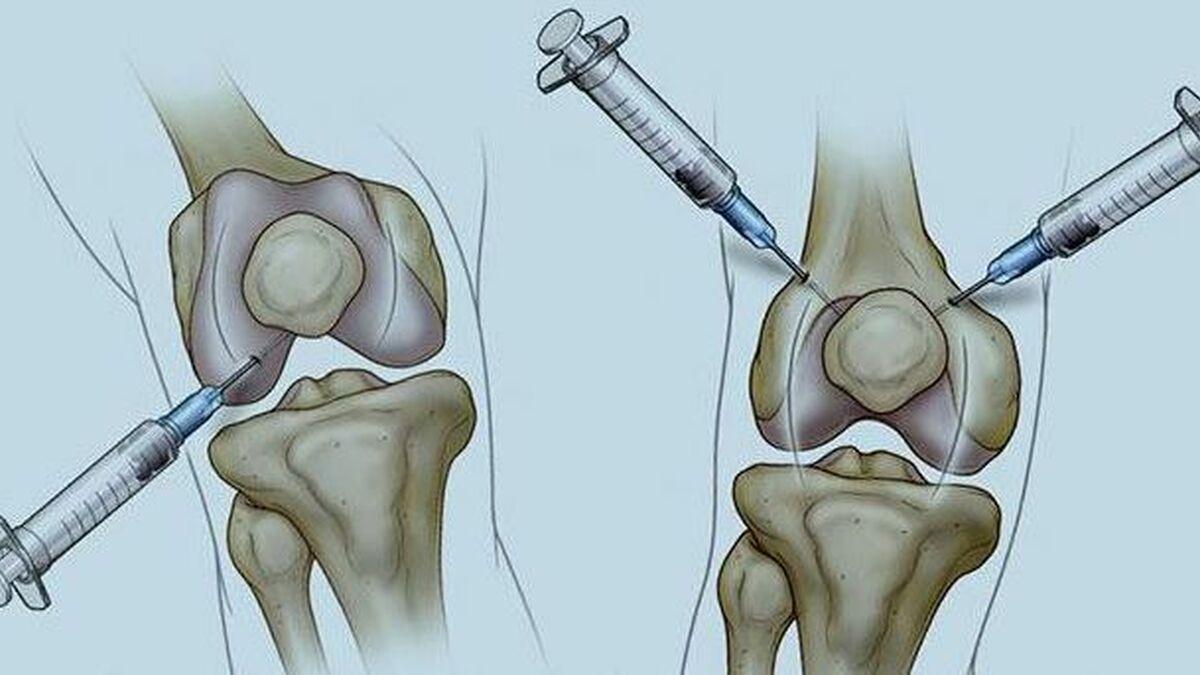 inyeccion maternity deterioro rodilla